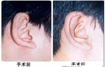 郑州整形招风耳:呵护耳,要用心