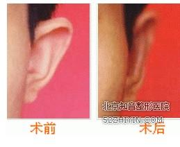 菜花耳整形对比图