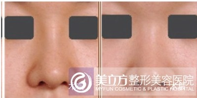 取鼻假体前后对比图