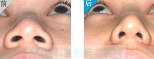 鼻头肥大整形对比图