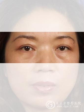 提眉手术前后对比图图片