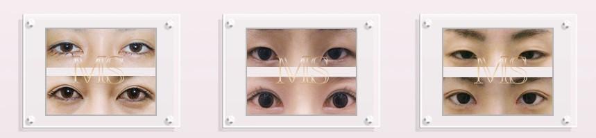 北京知音MS双眼皮案例