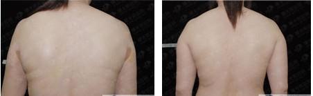 广州背部吸脂手术效果图