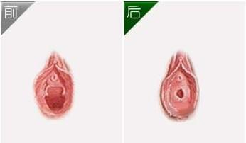 兰州阴道紧缩手术效果图