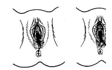 株洲阴道紧缩手术效果图