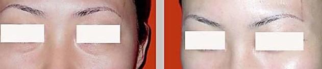 长沙祛眼袋失败修复手术案例