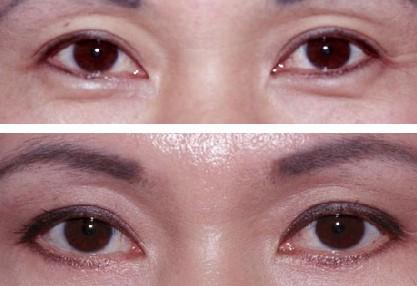广州祛眼袋失败修复手术效果图