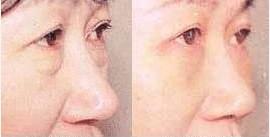 广州祛眼袋失败修复手术案例