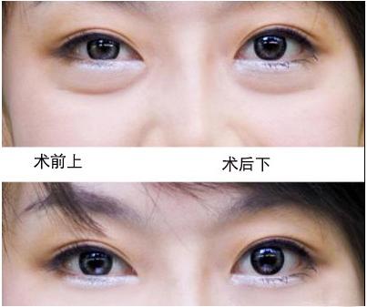韩式吸脂眼袋手术视频
