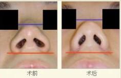 军区总院鼻孔开大术案例
