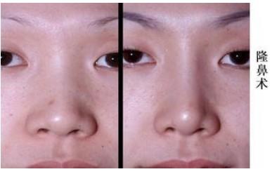 延世隆鼻假体取出术案例