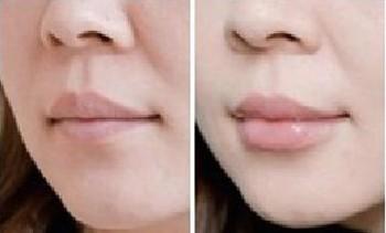 """亚峰""""M""""型唇美容手术案例"""