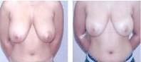 深圳胸部吸脂手术效果图