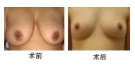 深圳胸部吸脂手术案例