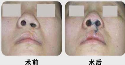 沃尔鼻孔开大术案例