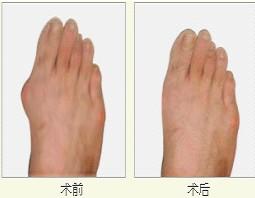 深圳大脚骨矫正手术案例