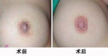 中山大学第一医院乳晕再造案例