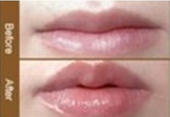 虹丽重唇修整手术案例