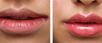 紫洁口角成形术案例