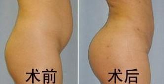 艺星自体脂肪丰臀术案例