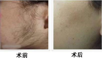 上海天大面部脱毛手术案例
