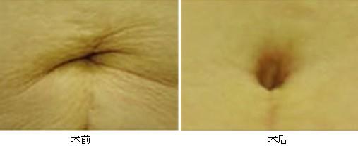 上海天大肚脐整形手术案例