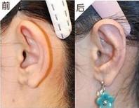 金光善耳垂裂矫正术案例