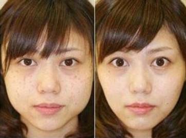 皮肤美容前后对比图 >>>上海鹏爱激光祛斑案例     激光祛斑介绍