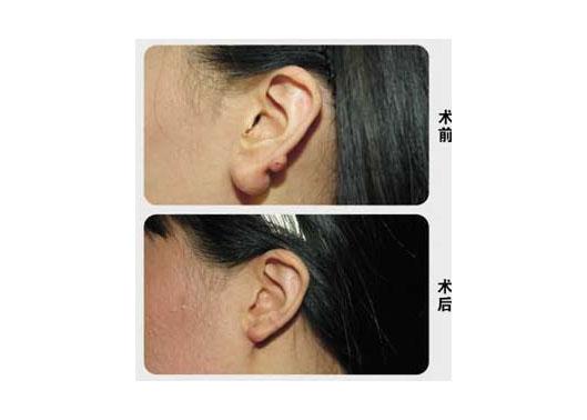 第四军医大学唐都医院耳垂畸形整形术案例