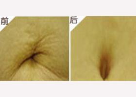 星雅肚脐整形案例