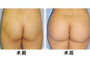 张朝蕾整容机构自体脂肪丰臀术案例
