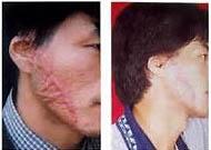 第二附属医院植皮术案例