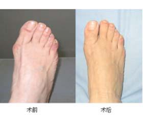 江苏省人民医院拇外翻矫正术案例