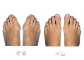 南京总医院拇外翻畸形矫正案例