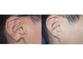 南大附属耳垂再造手术案例