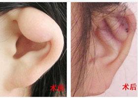西安航天总医院耳垂畸形修复案例