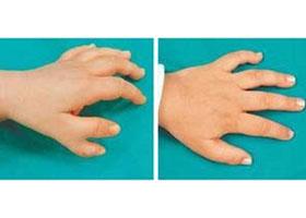 山东手足外科多指畸形矫正案例