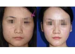 合肥丽人女子美容中心瘦脸针案例
