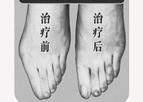 新疆医大附中医院整形外科美容科宽脚变窄案例
