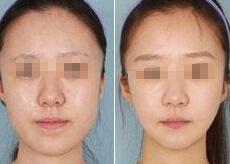 江阴新华诊所颊脂垫切除术案例
