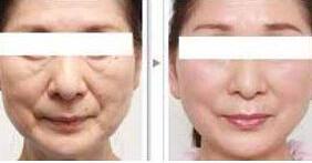 射频除皱紧肤术前做好哪些准备?