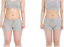 全身吸脂减肥术后护理