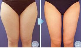 大腿吸脂术后护理方法