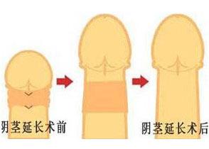 蚌埠医学院第二附属医院阴茎延长术案例