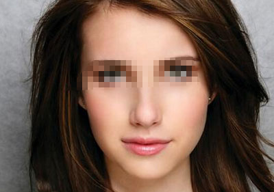 E光除皱术后护理是哪些?