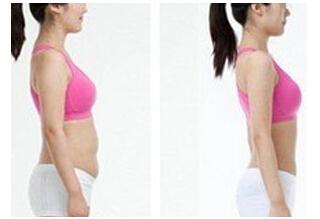 360度环形吸脂术后如何护理?