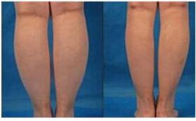 吸脂瘦小腿术后护理有哪点?