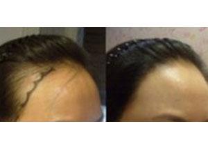 青岛伊美尔加禾植发发际线种植案例