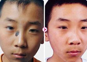 泉州西施医学整形治疗黑毛痣案例