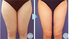 大腿吸脂整形手术后的护理怎么做?
